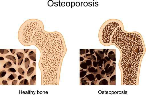 Best Tips for Osteoporosis Prevention and Management
